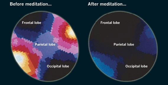 Impact of meditation on the brain: very interesting, but not the whole story.